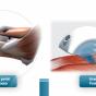 Ondes de choc: possible futur traitement des greffes de peau?